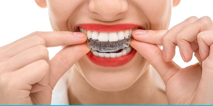 Clareamento Dental Na Raposo Tavares Em Sao Paulo Clinica Odonto